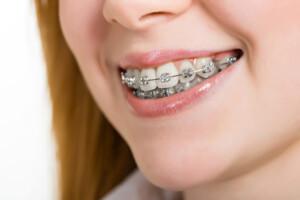 Teen wearing braces