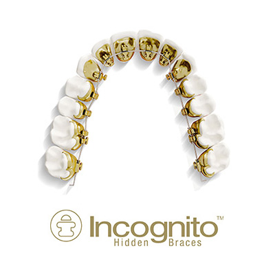 Incognito Hidden Braces - Lingual Braces