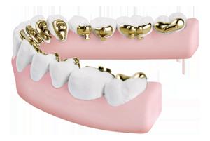 Incognito HIdden Braces, bottom teeth