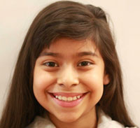 Picture of patient smiling after orthodontic treatment