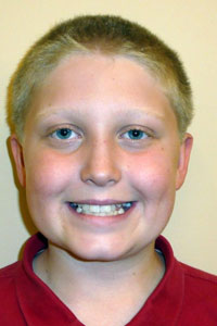 Picture of patient smiling before orthodontic treatment